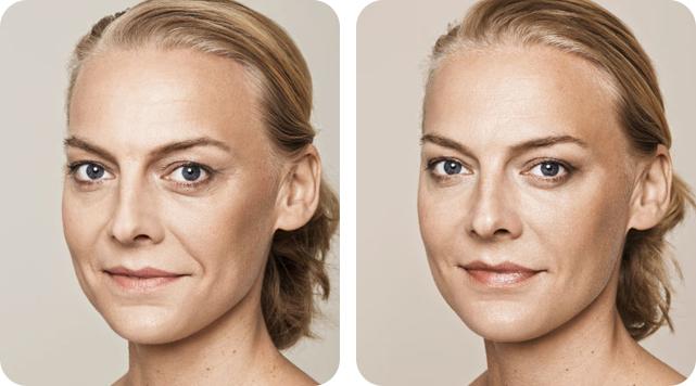 Dermal Fillers by SkinTuition