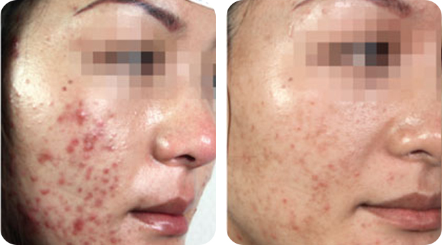 Acne removal by SkinTuition