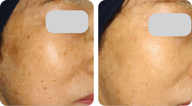 Age spots removal by SkinTuition