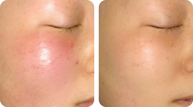 Erythema removal by SkinTuition