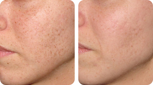 Freckles removal by SkinTuition