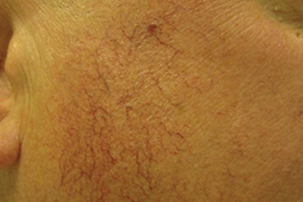 IPL Vascular Lesions