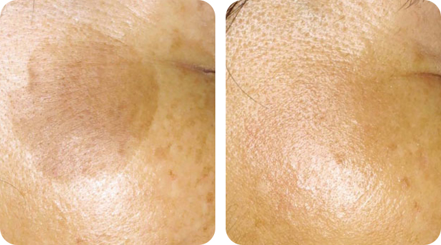 Keratosis removal by SkinTuition