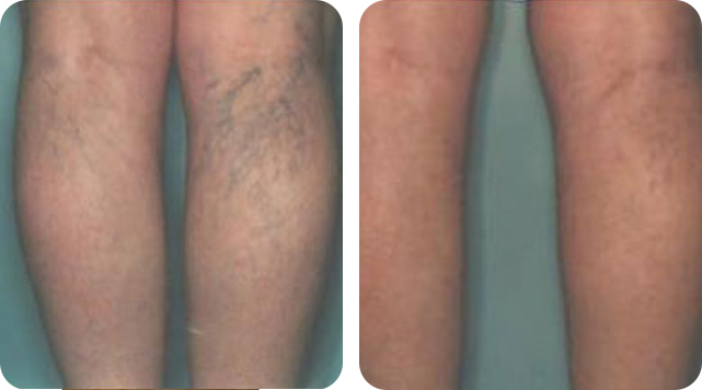 Leg and face vein removal by SkinTuition