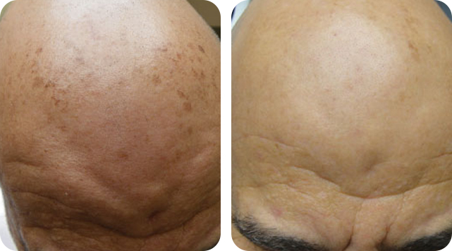Lentigines removal by SkinTuition