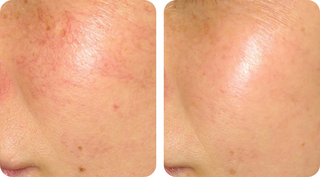 Rosacea removal by SkinTuition