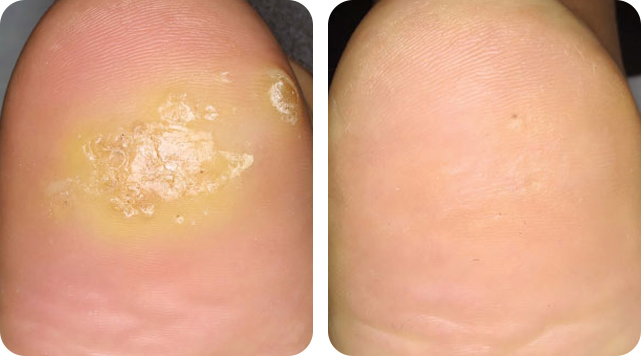 Warts removal by SkinTuition