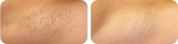 Hair removal by SkinTuition
