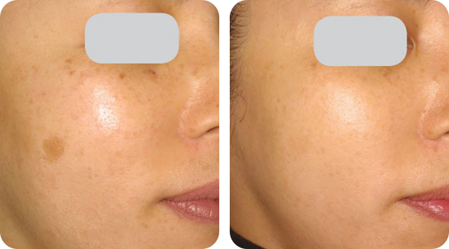 Skin Rejuvenation by SkinTuition